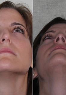 Искривление носовой перегородки при беременности